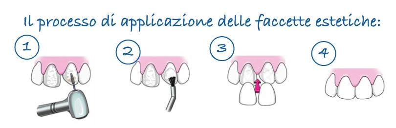 Faccette dentali quanto costano | Dentista Parma