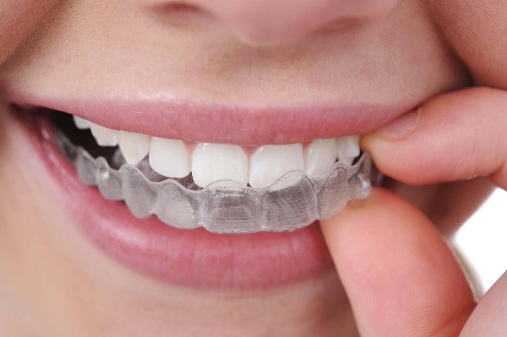 Allineamento Denti per Adulti Parma Carpi Modena Reggio Emilia | Centro Odontoiatrico Dentisti AKOS Dental Care