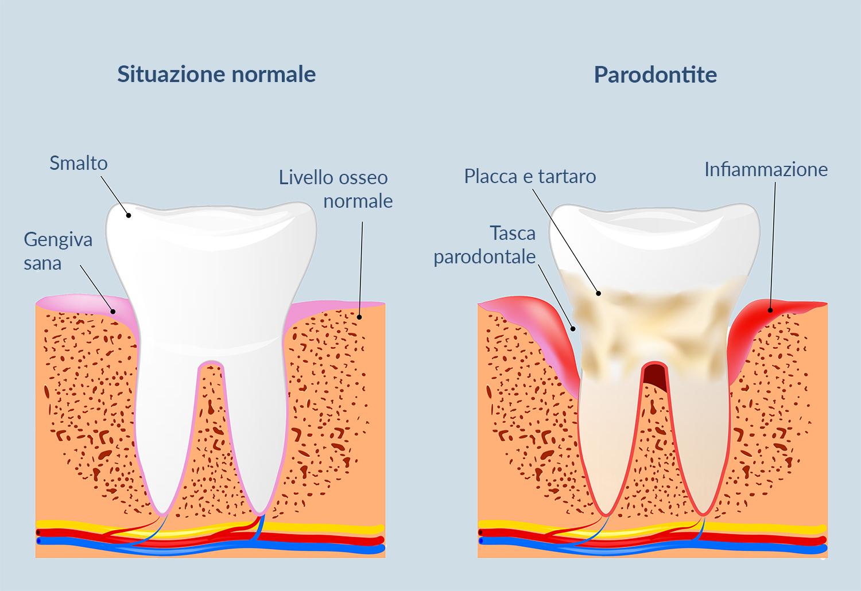 La Parodontite si cura con il Laser da AKOS Centro Odontoiatrico! Parma Carpi Modena Reggio Emilia Mantova