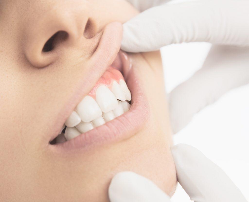 Piorrea e Cura Laser | AKOS Centro Odontoiatrico Dentisti Specializzati a Parma Carpi Modena Reggio Emilia Mantova