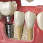 Impianti Dentali e il risparmio che non conviene | AKOS Centro Odontoiatrico Dentisti a Parma Carpi Modena Reggio Emilia Mantova