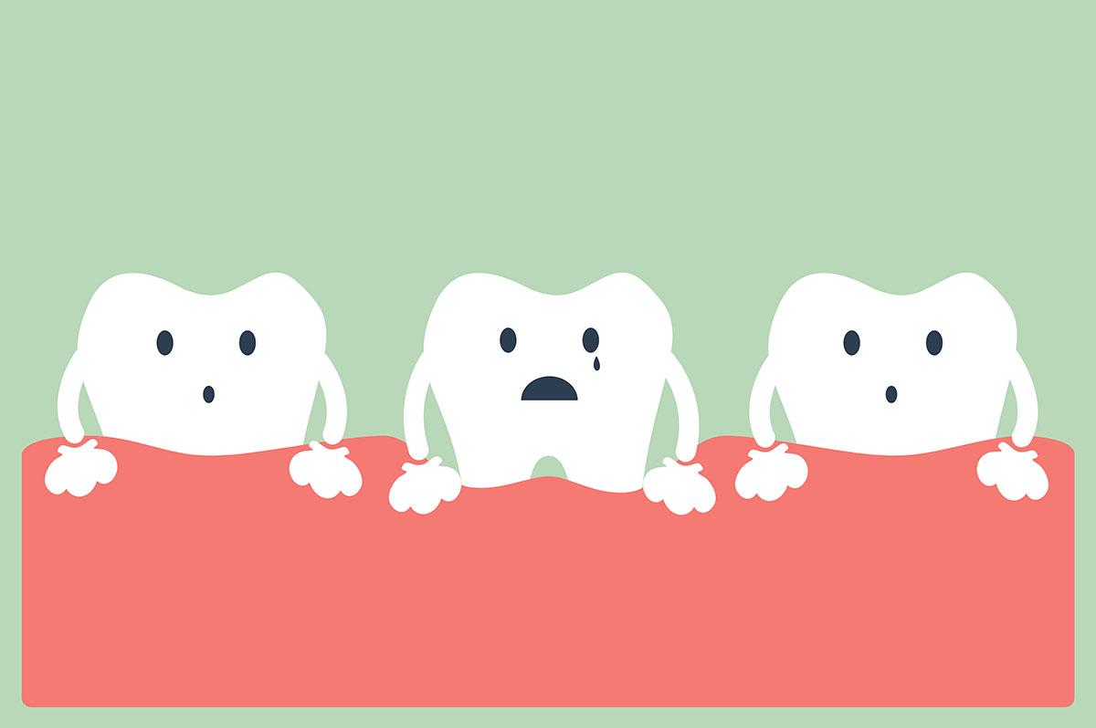 Primi sintomi della Piorrea e cosa fare | AKOS Centro Odontoiatrico Dentisti a Parma Carpi Modena Reggio Emilia Mantova