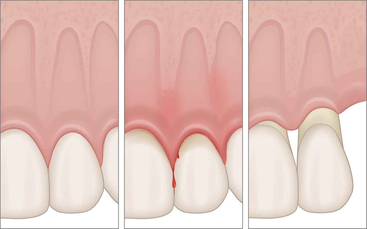 Recessione gengivale ovvero gengive ritirate | AKOS Centro Odontoiatrico Dentisti a Parma Carpi Modena Reggio Emilia Mantova