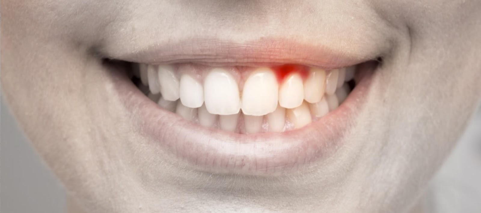 Il sanguinamento delle gengive | Dentisti AKOS Centro Odontoiatrico Dentisti a Parma Carpi Modena Reggio Emilia Mantova