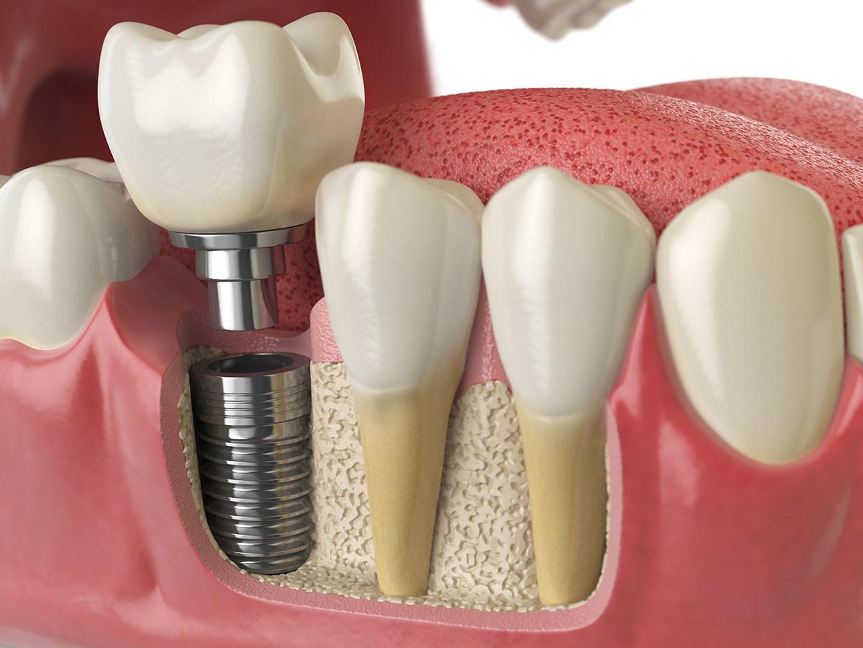 Rigenerazione Ossea Dentale | AKOS Centro Odontoiatrico Dentisti SPECIALIZZATI a Parma Carpi Modena Reggio Emilia