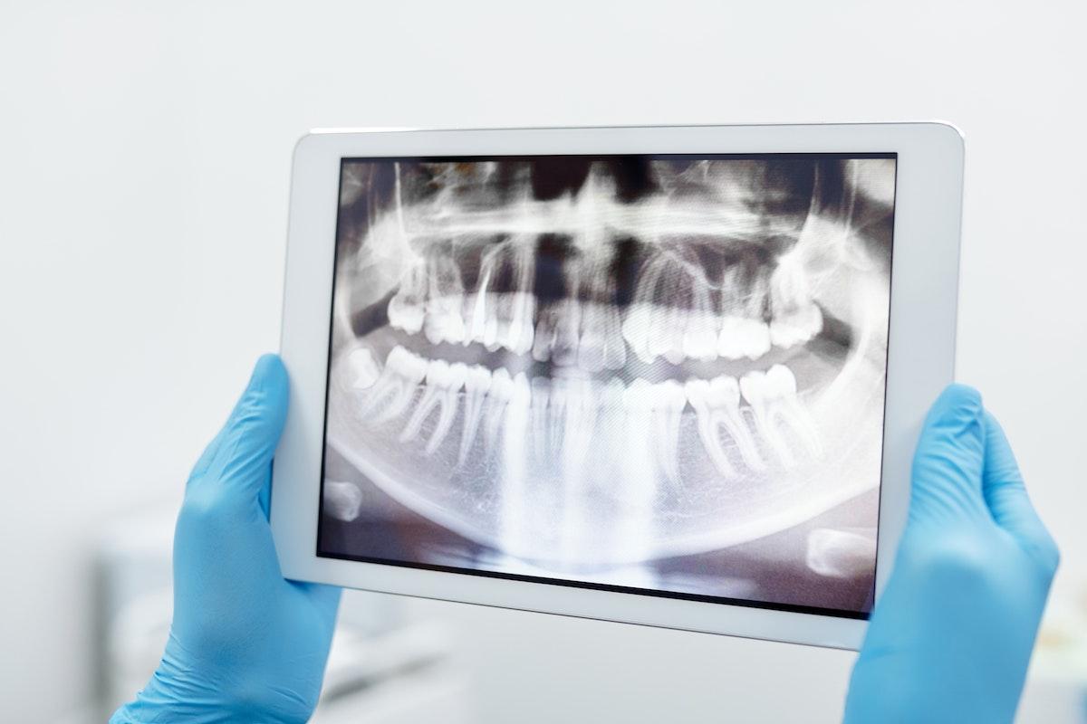 Chirurgia Dentale Guidata AKOS Dental Care Parma Carpi Modena Reggio Emilia | Eccellenze in Chirurgia Orale e Implantologia
