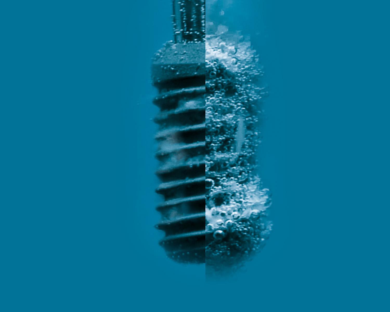 Infezione da Impianto Dentale? AKOS rigenera il tuo Impianto a Parma Carpi Modena Reggio Emilia Fiorenzuola | AKOS Dental Care