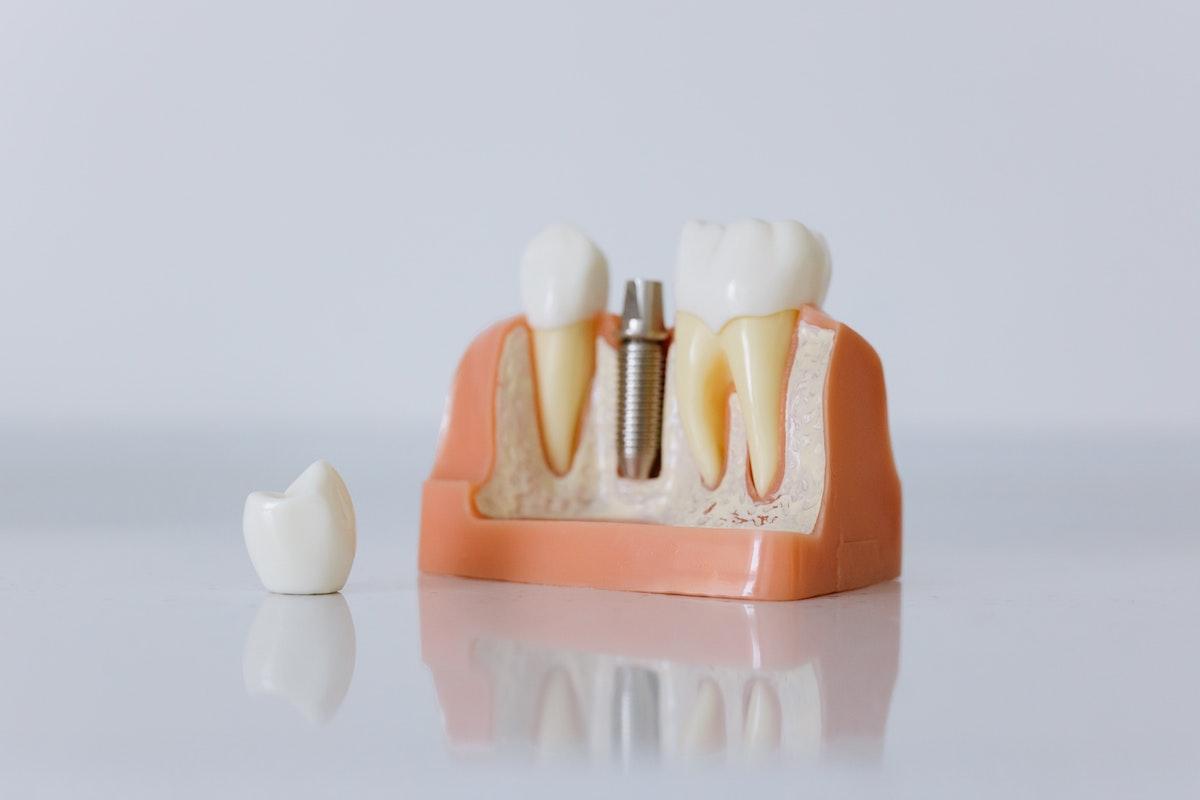Il Miglior Tipo di Impianto Dentale Senza Bisturi Traumi Errori Punti Parma Carpi Modena Reggio Emilia | AKOS Dental Care