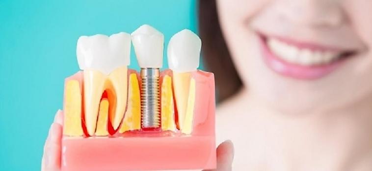 Rateizzazione Impianti Dentali Parma: Centro Odontoiatrico AKOS