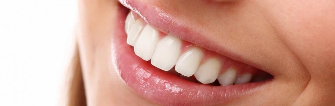 Estetica Dentale a Parma con AKOS Dental Care