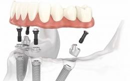 Impianti Dentali All on four 4 con Chirurgia Guidata
