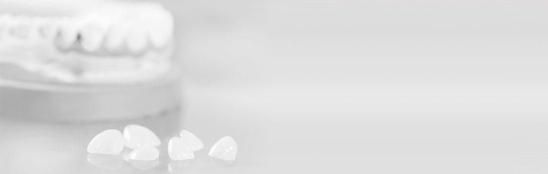 Faccette di ceramica per denti perfetti