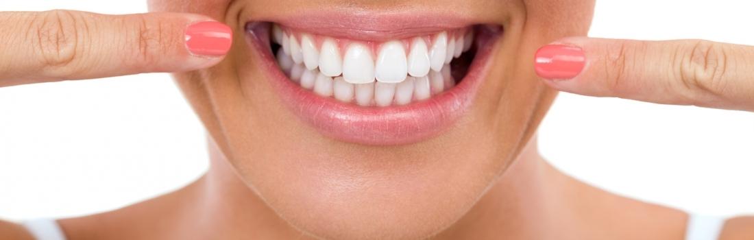 Impianti Dentali a Parma con AKOS Dental Care