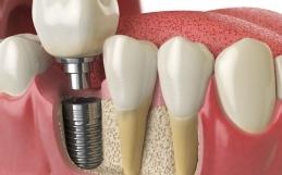 Impianti Dentali e il risparmio che non conviene