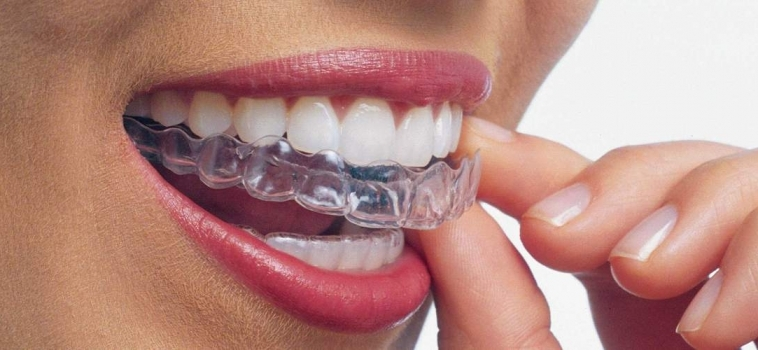 ALLINEAMENTO DENTI INVISIBILE
