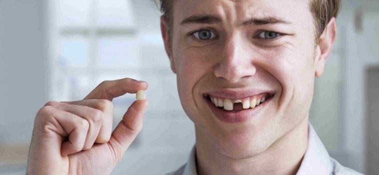 Perdita Denti.. Cause e Soluzioni