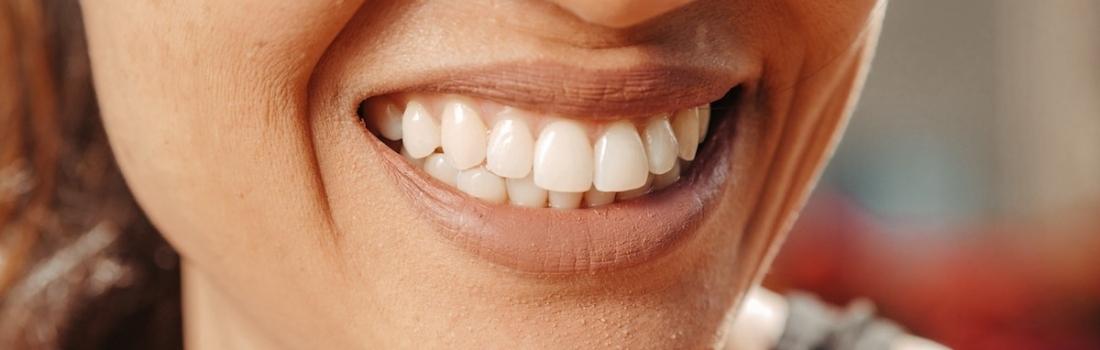 I tre tipi di Malocclusione Dentale