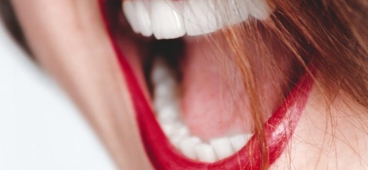 Impianti Dentali ad Arcata All On 4 AKOS